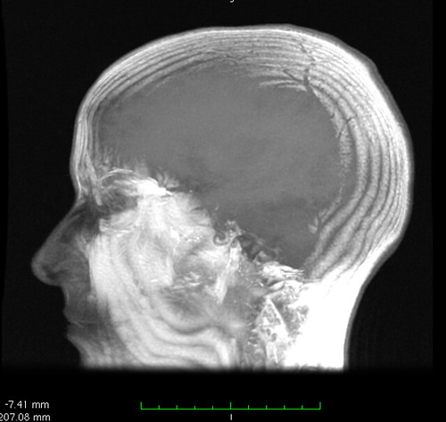 """head-rendering from brain MRI"" by Liz Henry is licensed under CC BY-ND 2.0"