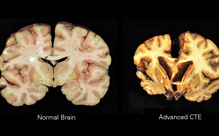 A 'healthy' brain compared to one with advanced chronic traumatic encephalopathy (CTE), which is linked to early onset dementia